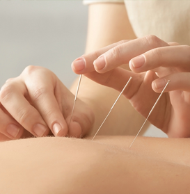 Acupuncture Dubai